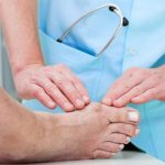 Come curare alluce valgo senza chirurgia