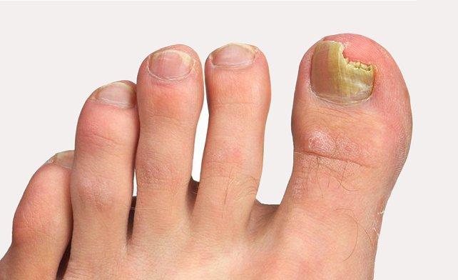 Medicina forte per trattamento di un fungo di unghie