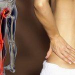 Come curare la sciatica alla gamba