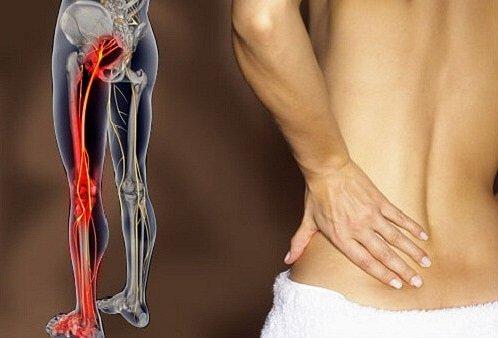 Cosa tratta la chiropratica