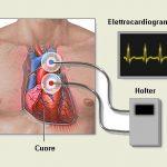ECG Holter: come si fa
