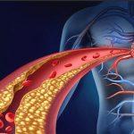 Come curare la dislipidemia