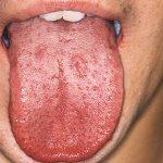 Come curare la sifilide
