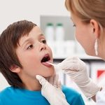 Come curare la tonsillite