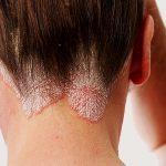 Come curare la psoriasi in testa