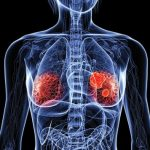 Ormoni e cancro: effetti sul rischio