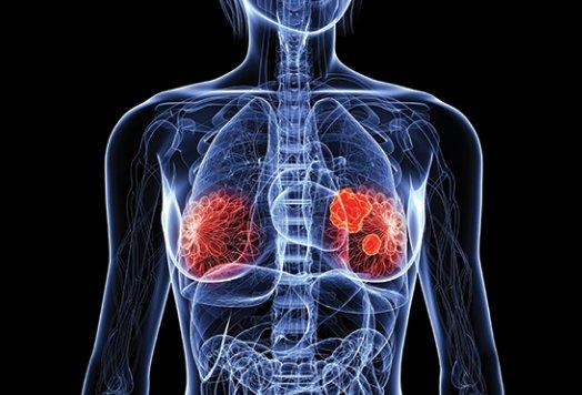 terapia ormonale sostitutiva per il cancro alla prostata